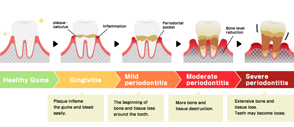 Stages of Periodontal Disease