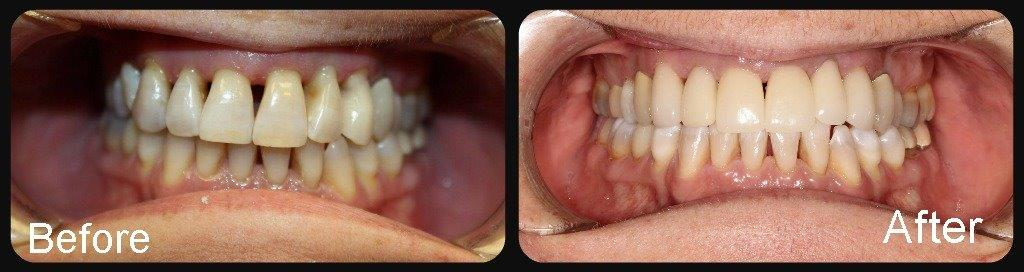 Before After Smile