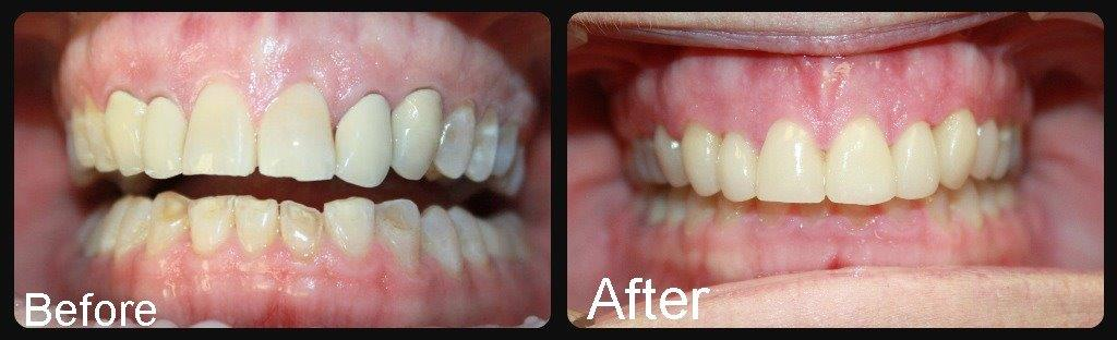 Before/After Smile Gallery